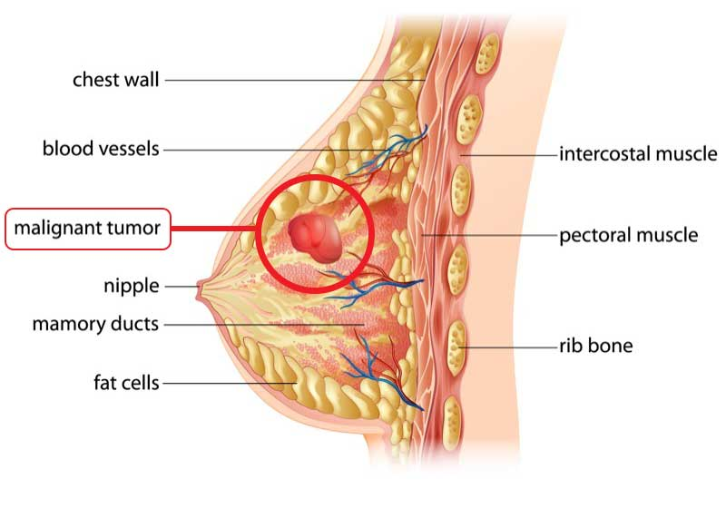 breast cancer anatomy